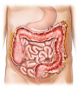 Darminfectie met diarree als gevolg
